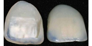 Chandler Dental Veneers
