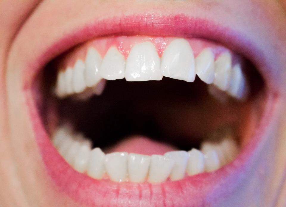 The Invisalign Experience - Part 2