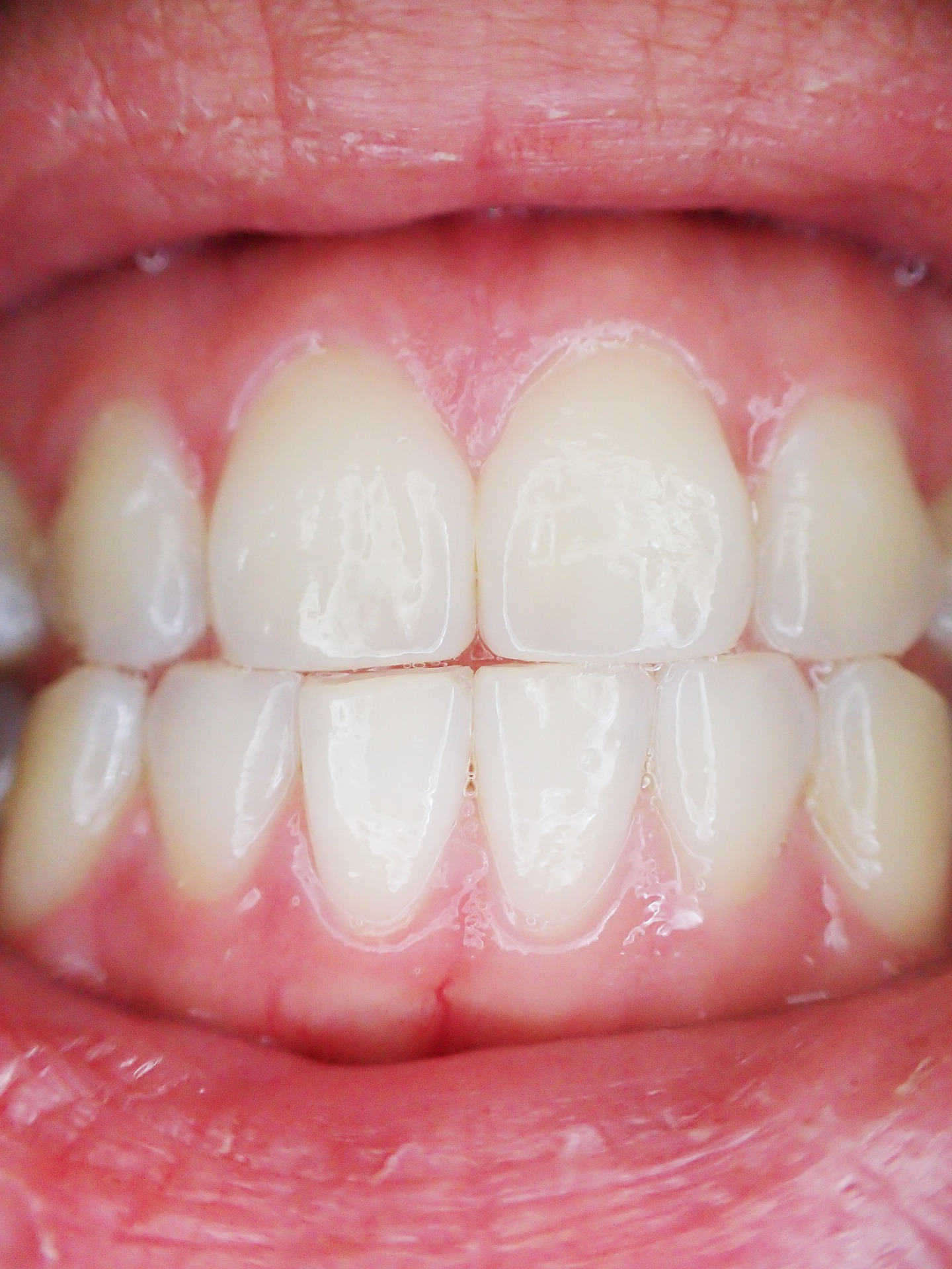 Deep Cleaning For Gum Disease An Essential Guide Kyrene Dentistry