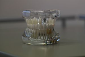 Should You Consider Dental Implants?