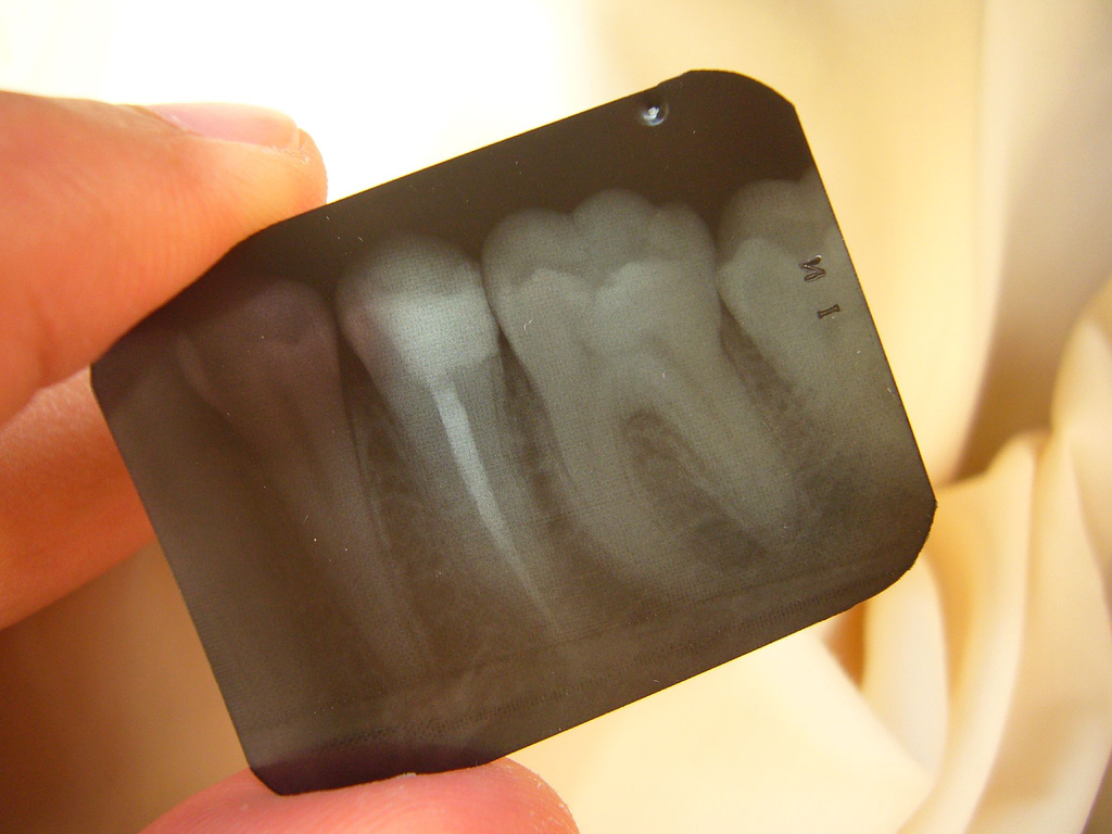 Root Canal Gone Bad The Complications Kyrene Family Dentistry Az Blog