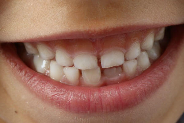 What is tooth decay and can it be reversed?