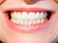 Natural Teeth Whitening Tips