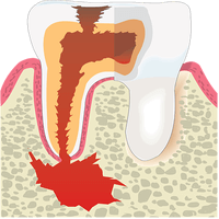Root canal: Everything you need to know