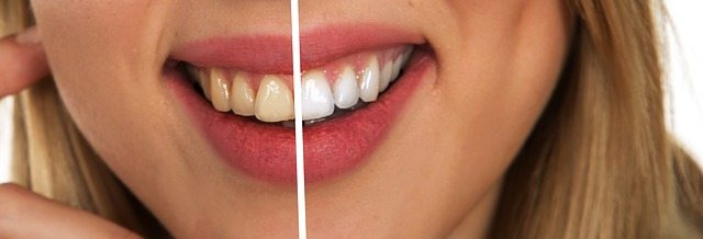 teeth whitening in chandler az