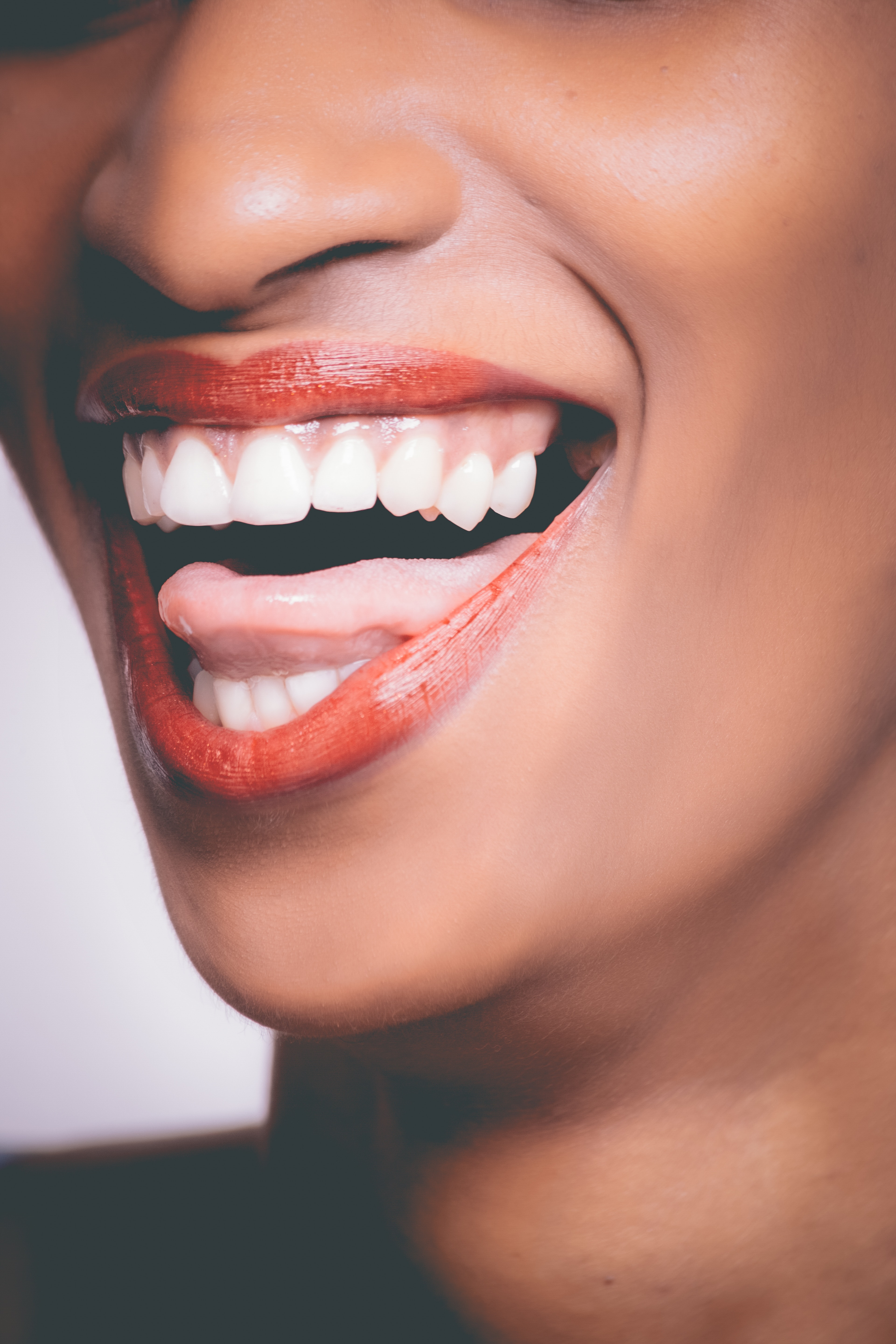 What You Need To Know About Gum Recession