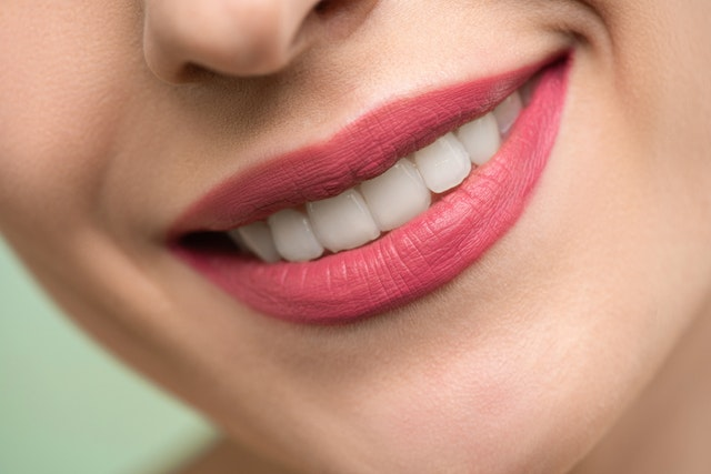 Everything You Need to Know About Teeth Stains