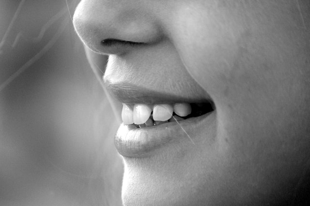All Your Burning Hyperdontia Questions Answered